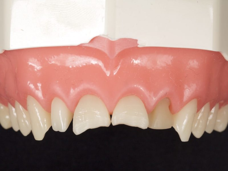 A-Z of Restorative Dentistry