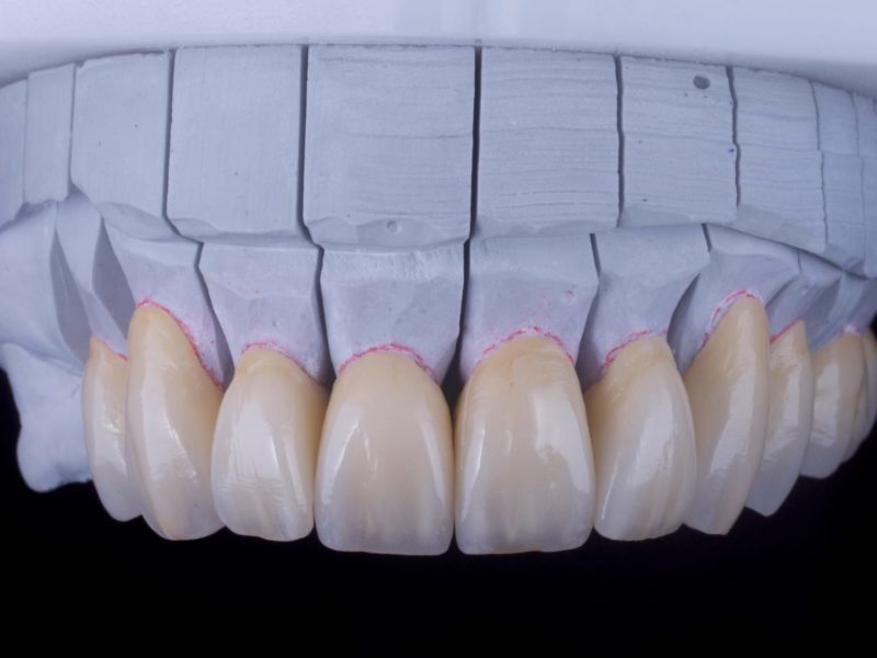 A-Z of Restorative Dentistry
